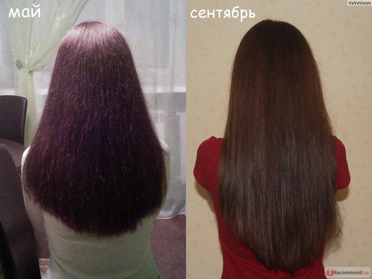 Таблетки для роста волос, отзывы людей.